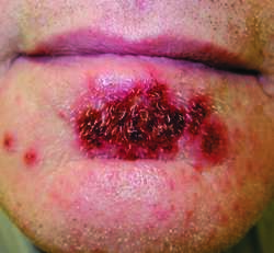 impetigo | definition of impetigo by medical dictionary, Cephalic Vein