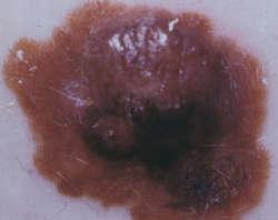 Melanotic Neuroectodermal Tumor Of Infancy
