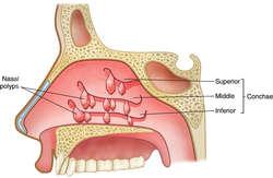 steroid nasal drops sinus