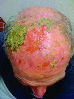 staphylococcus dermatitis