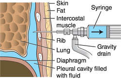 Thoracentesis Definition Of Thoracentesis By Medical