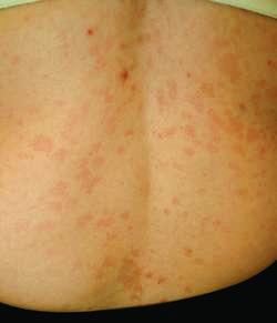 Tinea versicolor - back: MedlinePlus Medical Encyclopedia ...
