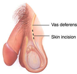 vasectomy | definition of vasectomy by medical dictionary, Human Body