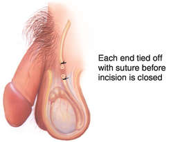 Are also Saving male sperm before visectamy authoritative