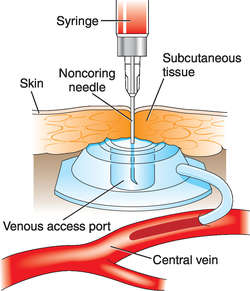 Venous access port definition of venous access port by - Pose de chambre implantable technique ...