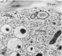 Electron micrograph of a  Vacuole Animal Cell Micrograph