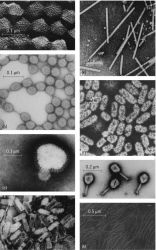 Electron micrographs of highly purified preparations of some viruses