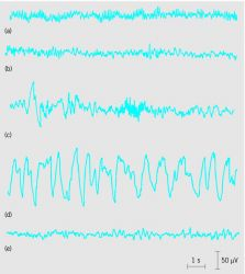 Human EEG associated with different stages of sleep and wakefulness