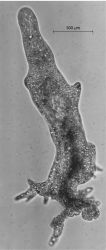 Phase-contrast photomicrograph of Amoeba proteus , a large fresh-water ameba