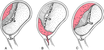 abruptio placenta Placental abruption refers to a premature separation of the normally implanted placenta after the 20th week of gestation and before the 3rd stage of labour it is a.