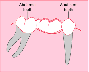 Dental abutment | definition of dental abutment by Medical dictionary
