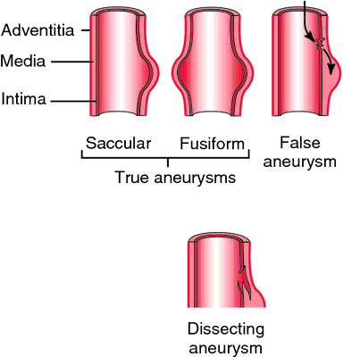 atherosclerotic aneurysm | definition of atherosclerotic aneurysm, Human Body