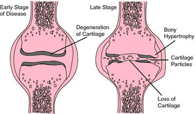articular cartilage | definition of articular cartilage by medical, Human Body