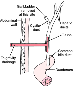 Placement of T-tube following  T Tube Drain Removal