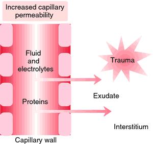 Edema formation. With trauma, increased capillary permeability and ...
