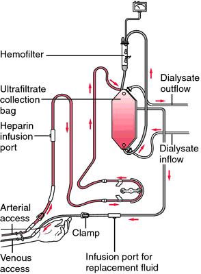 dialysis machine definition