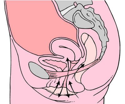 Pubococcygeus Muscle Exercise http://medical-dictionary.thefreedictionary.com/Kegel+exercises