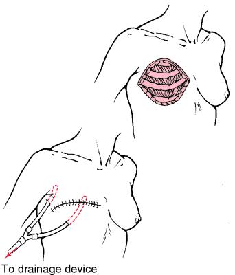 Lymph node Removal - News-Medicalnet