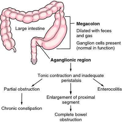 Inherited Megacolon Definition Of Inherited Megacolon By
