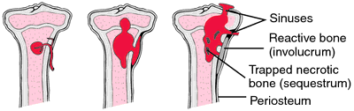 Osteomyelitis pathogenesis