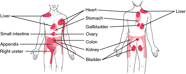 Referred Pain http://medical-dictionary.thefreedictionary.com/referred+pain