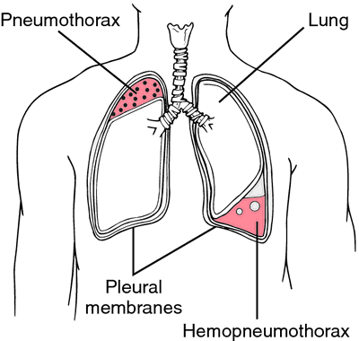 Pneumothorax | definition of pneumothorax by Medical dictionary