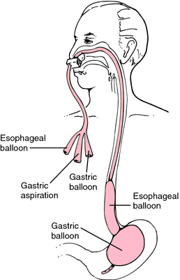 patient care for esophagogastric balloon tamponade tubes Biliary atresia: indications and timing of liver transplantation and optimization of pretransplant care.