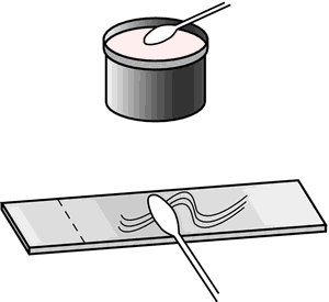 Smears from opaque thick liquids or semisolids, such as stool, can be ...