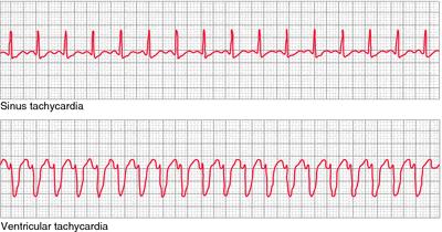 Sinus tachycardia  B  Ventricular tachycardia  From Chernecky  2001    Paroxysmal Atrial Tachycardia Vs Sinus Tachycardia