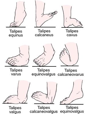 Deformity nohy
