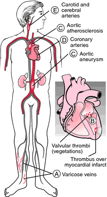 Mural thrombus definition of mural thrombus by medical for Aortic mural thrombus