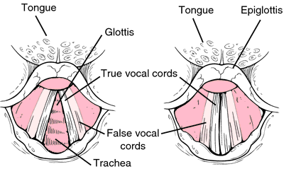vocal cord acute bilateral paralysis - definition of vocal cord