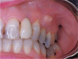 Definition Of Periodontal Abscess