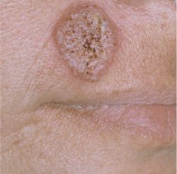 Blastomycosis - Wikipedia
