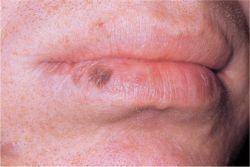 Labial Melanotic Macule | Dermatology Education