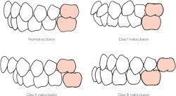 Malocclusion | definition of malocclusion by Medical dictionary