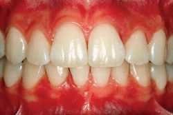 Periodontal Disease Definition