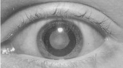 Cataract definitions 500069-fx12.jpg