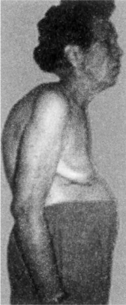 osteoporosis x ray. Osteoporosis.