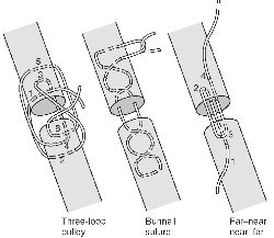 horizontal mattress suture #11