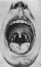 uvula - a small pendant fleshy lobe at the back of the soft palate