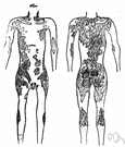 tropical sore - leishmaniasis of the skin