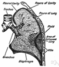 pleurisy - inflammation of the pleura of the lungs (especially the parietal layer)