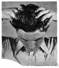 scalp - the skin that covers the top of the head