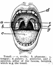 tonsil - either of two masses of lymphatic tissue one on each side of the oral pharynx