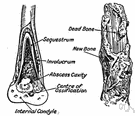 osteomyelitis - an inflammation of bone and bone marrow (usually caused by bacterial infection)