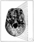 foramen magnum - the large opening at the base of the cranium through which the spinal cord passes