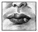 canker - an ulceration (especially of the lips or lining of the mouth)