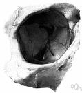cranial orbit - the bony cavity in the skull containing the eyeball
