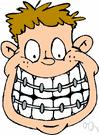 brace - an appliance that corrects dental irregularities